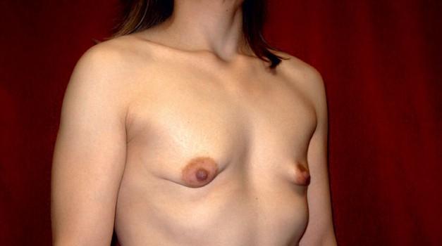 Sarahine dojke pred operacijo (foto: Osebni arhiv)