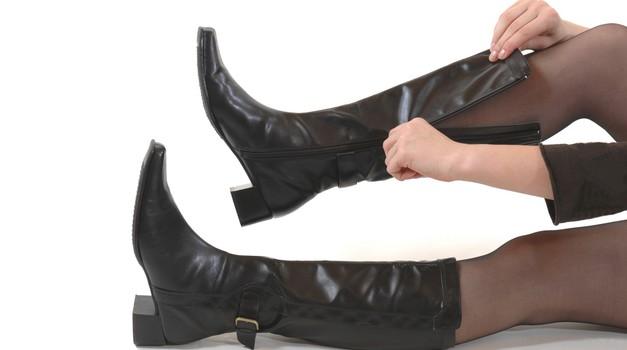 Lepotni trik: Poskrbi za izsušeno kožo pod nogavicami (foto: shutterstock)