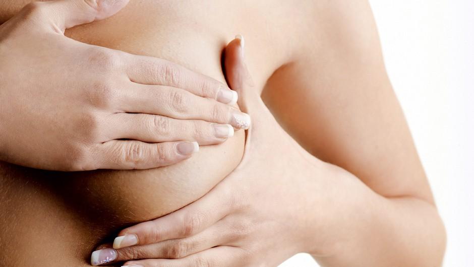 Ovrgli smo največje mite o raku dojk (foto: shutterstock)