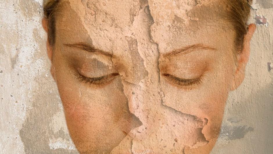 Imaš težave s suho kožo na obrazu?  (foto: Profimedia)