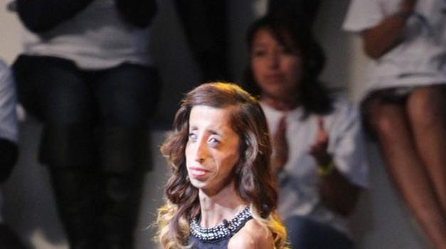 Naj te navdahne življenjska zgodba Lizzie Velasquez (foto: profimedia)