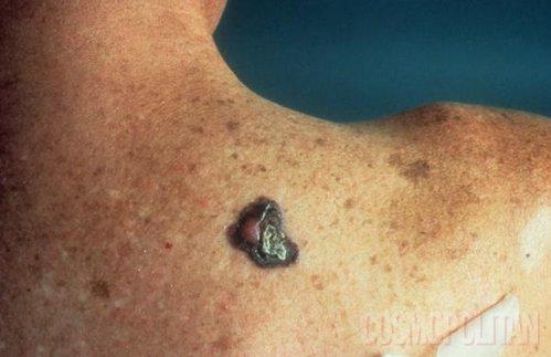 Rezultat tatujev iz sončnih opeklin je lahkko kožni rak