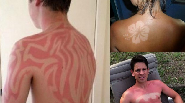 Nevaren Twitter trend: Tatuji iz sončnih opeklin! (foto: Twitter)