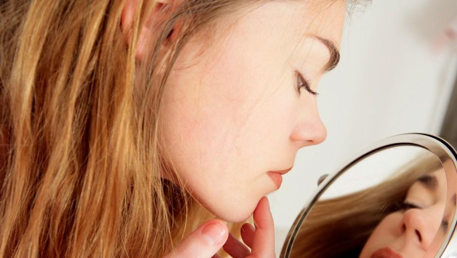 Kako počiš mozolj (če ga že res moraš)? (foto: Profimedia)
