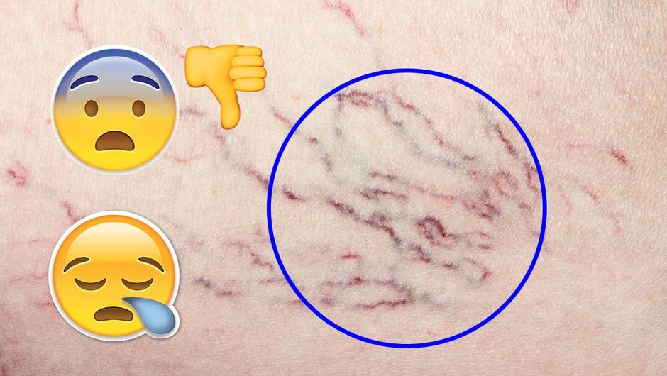 Top NARAVNA sredstva, s katerimi lahko odpraviš moteče drobne žilice (foto: Profimedia)