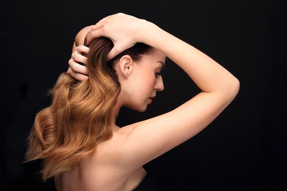 Skrivnost lepih las se skriva v zdravem lasišču - ga imaš? (foto: Profimedia)