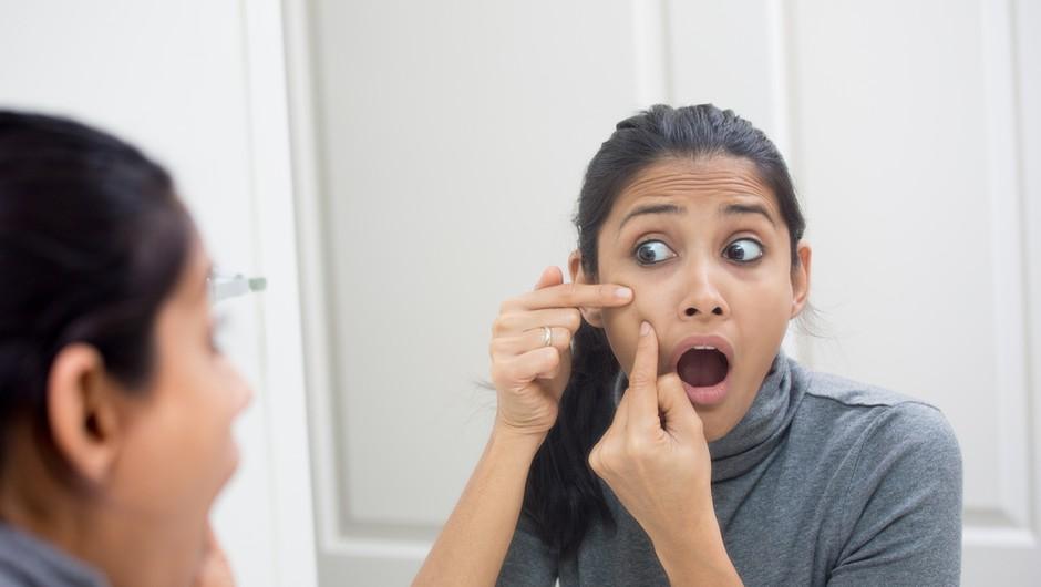 Imaš težave z aknami? Obstaja naravna in učinkovita rešitev! (foto: Shutterstock)