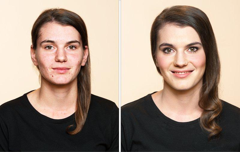 Tadeja pred in po uporabi korekcije Dermablend 3D
