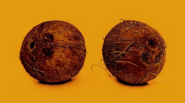 Ti okrog prsnih bradavic rastejo dlake? To lahko pomeni, da ... (foto: Unsplash.com/Chris Liverani)