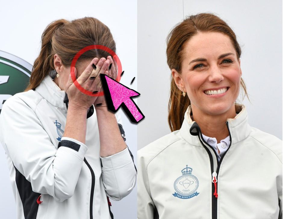 Si opazila, da Kate Middleton na rokah vedno nosi OBLIŽE? 🧐 TO je razlog ... (foto: Profimedia)